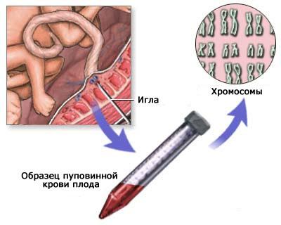 Кордоцентез при беременности отзывы