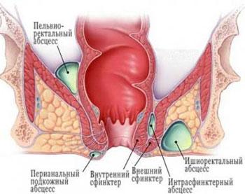 Парапроктит – болезнь новорожденных и грудничков