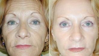 aplicacion botox contra las arrugas